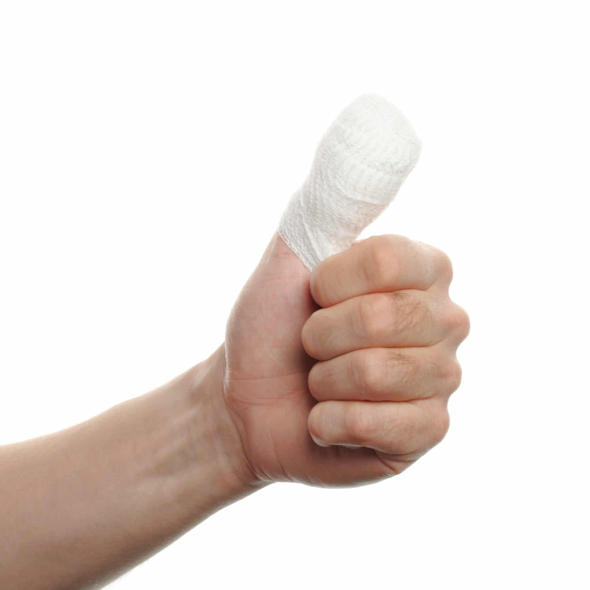 bandaged hand giving thumbs up for how long workers comp lasts